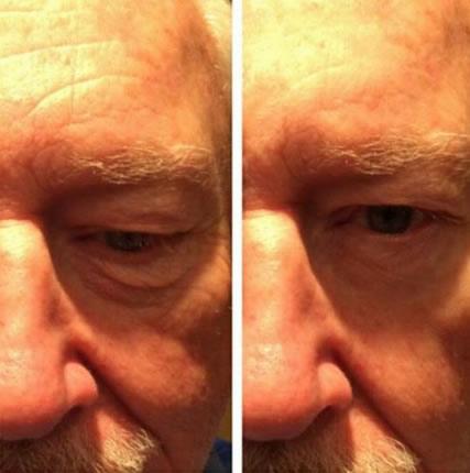 sozo-instant-results4